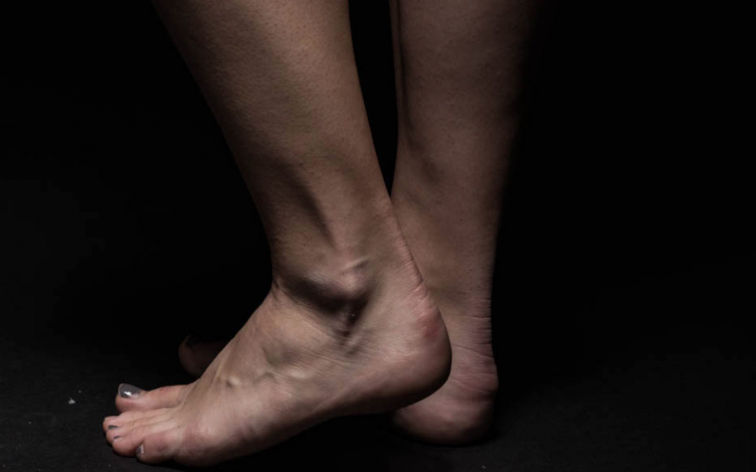 The Best Practices For Preventing And Treating Ankle Injuries